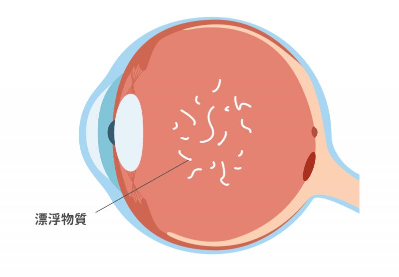 飛蚊症病變時眼部的構造變化