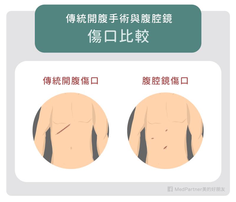 膽結石的手術方式